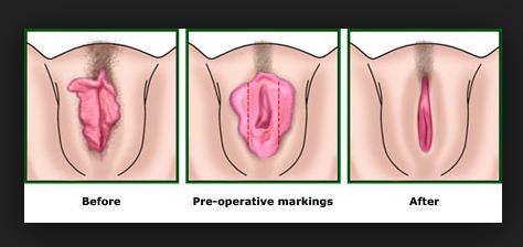Labioplastia Laser