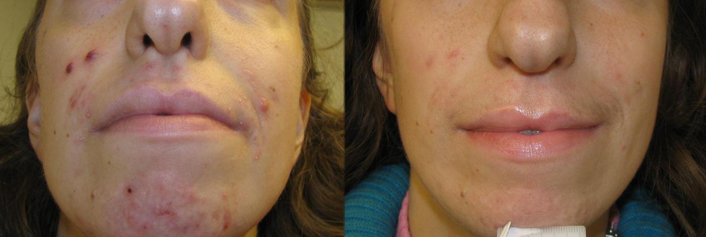 Dimeksid de las arrugas alrededor de los ojos la aplicación y las revocaciones