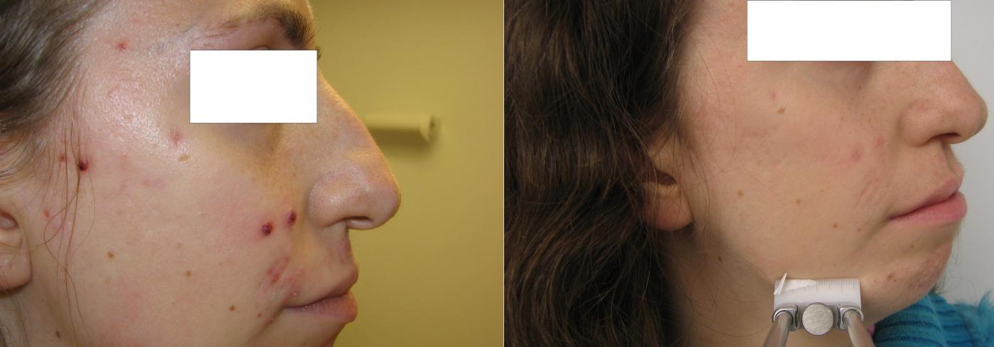 Las máscaras para la persona nutritivo con el kéfir