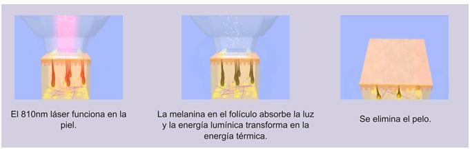 Depilacion Laser Permanente