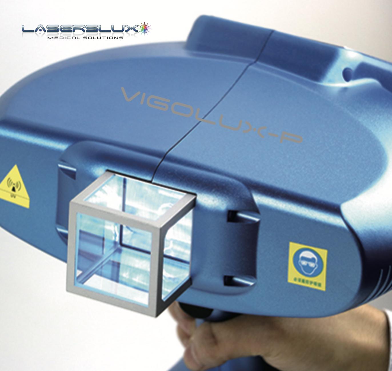 Equipo Laser Eximer para vitíligo 2